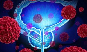 Мужчины чаще болеют раком