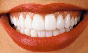 Восстановление и протезирование зубов