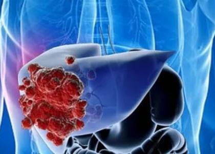 Рак печени связан с мужскими гормонами
