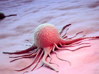 Медики нашли новый метод профилактики рака