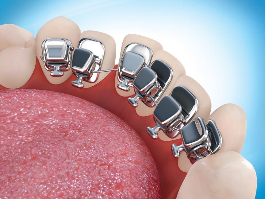 Сущность ортопедической стоматологии, ее эффективность