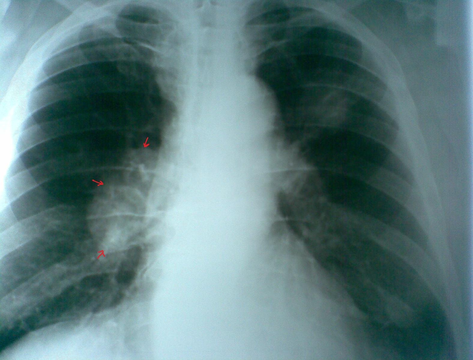Радон в воздухе жилых помещений приводит к развитию рака лёгкого