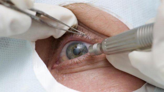 Реабилитационный период после операции по удалению катаракты