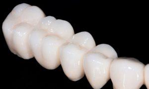Своевременное протезирование зубов – залог здоровья