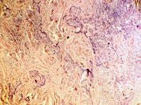 Лекарство от гипертонии может вылечить рак кожи