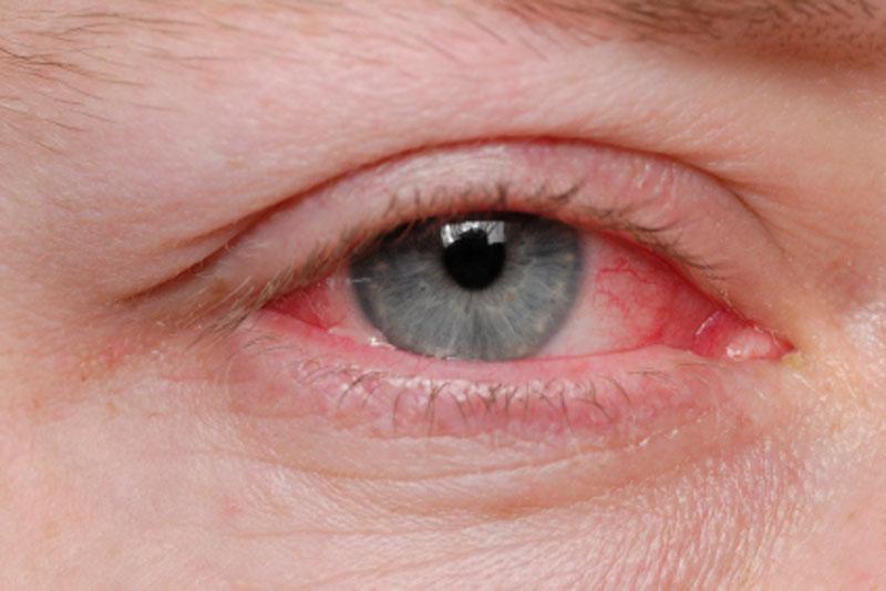 У диабетиков на 30% выше риск возникновения заболеваний глаз