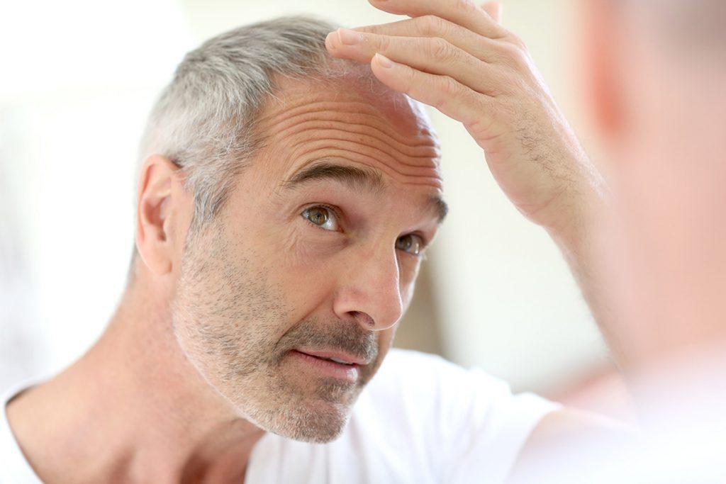 Поседение волос как предиктор риска развития ИБС