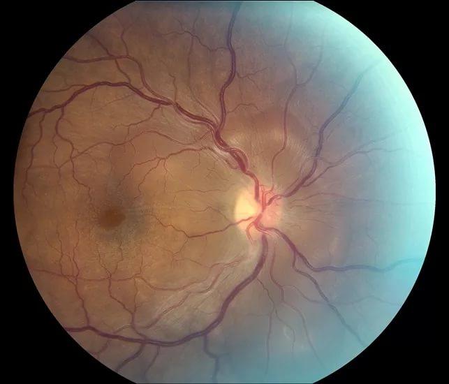 Ученым удалось восстановить поврежденный зрительный нерв
