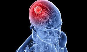 Ученые связали вероятность развития рака мозга с уровнем сахара
