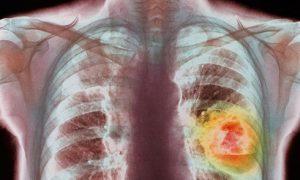 Ученые нашли новое лекарство от рака легких