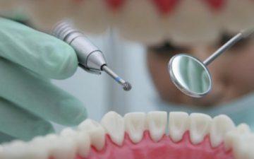 Зубы и пломбы укрепят… виноградними косточками