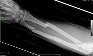 Прощай, гипс: тяжелые переломы научились лечить без трансплантатов