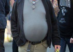 Россияне вдвое чаще стали болеть ожирением