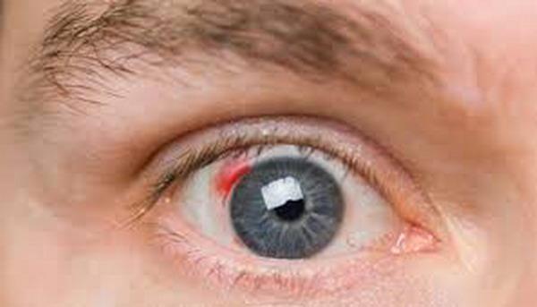 Что такое кровоизлияние в стекловидное тело