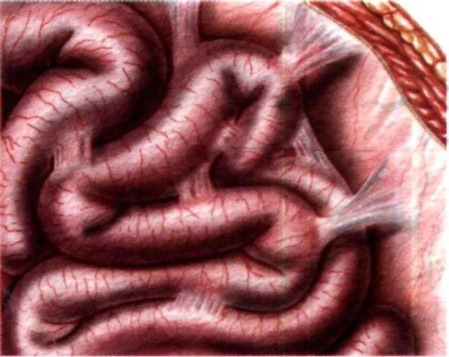 Спайки после операции: симтомы, лечение и профилактика