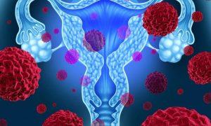 Общий генетический дефект может увеличить риск рака яичников