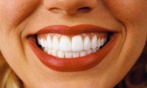 В чем причина зубных заболеваний