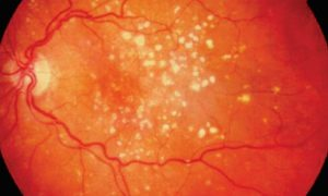 Дополнительный прием витаминов снижает риск возрастной макулопатии