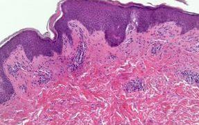 Розовый лишай, симптомы