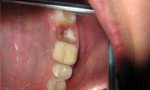 Процесс заживления зуба после удаления