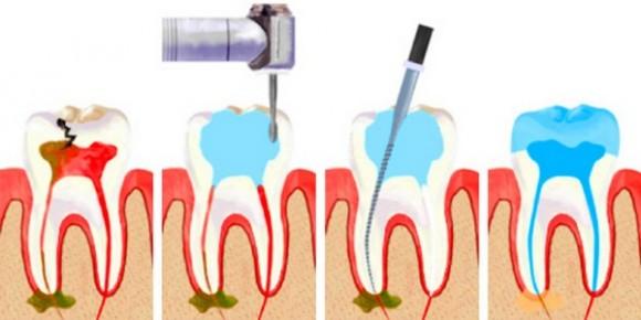 Гниет рот — причины, лечение