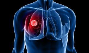В Смоленской области смертность от туберкулеза почти на треть ниже общероссийской