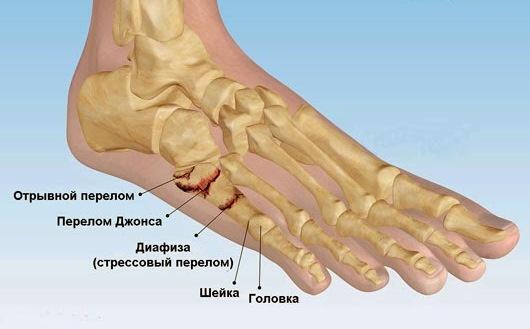 Симптомы и лечение переломов костей стоп и пальцев