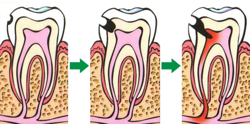 Кариес зубов – причины, симптомы, терапия и методы профилактики