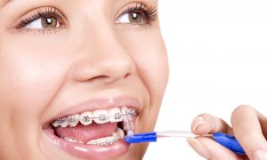 Портят ли брекеты зубы?