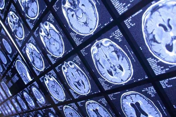 Противопоказания к МРТ головы с брекетами