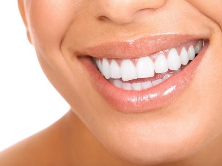 Реставрация зубов – гарантия красивой улыбки