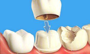 Поставить коронку на зуб: этапы процедуры