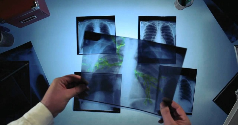 Приставы принудительно отправили лечиться больного туберкулезом смолянина