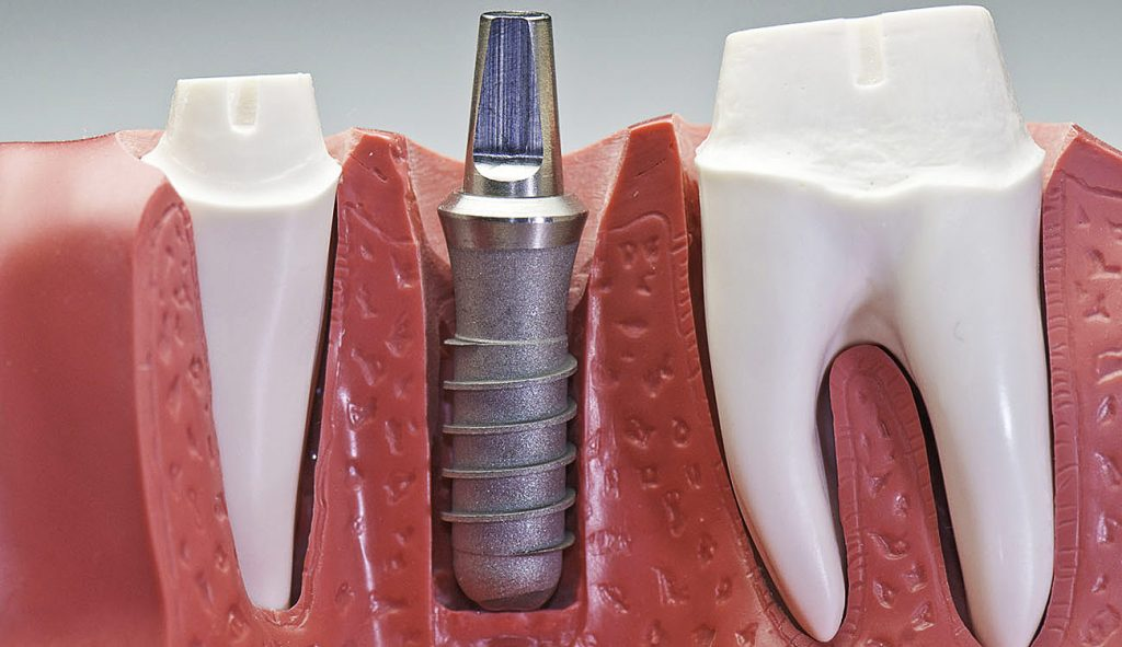 Материал и физиологическая форма имплантов