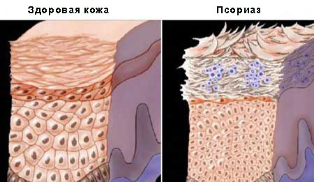 Немного о псориазе