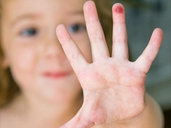 Нужно ли лечить бородавки у детей или лучше подождать
