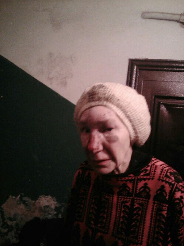 В Смоленске несколько дней ищут родственников избитой женщины, потерявшей память