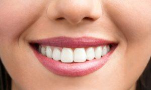 Как избежать проблем с зубами?