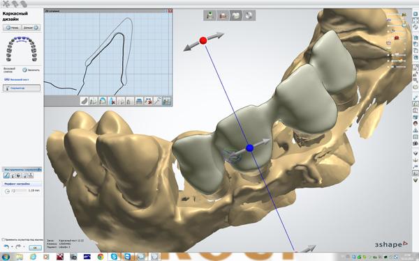 История появления и внедрения систем трехмерного моделирования в стоматологии