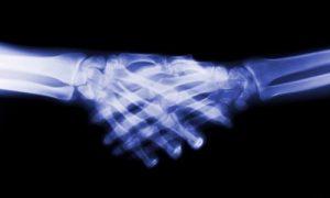 Жителей райцентра Смоленской области отправляют делать рентген за сотни километров