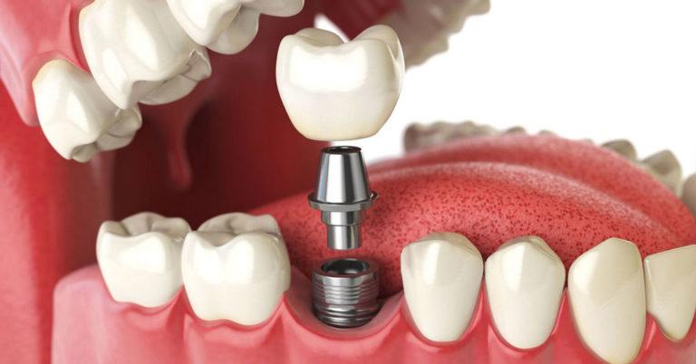 Процедура имплантации под ключ