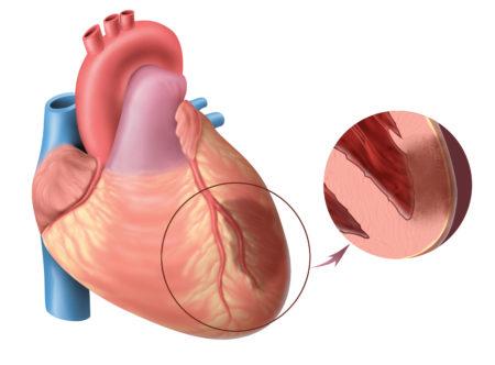Риск развития атеросклероза (скрининг)