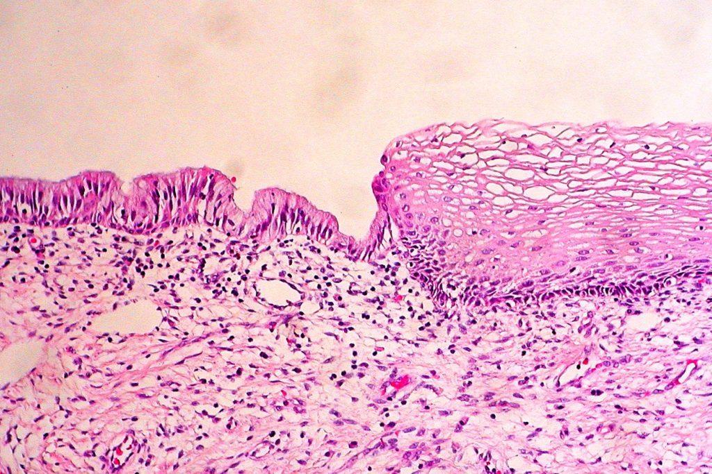 Что такое эктопия шейки матки?