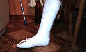 Смолянину, сломавшему ногу посетителю кафе, грозит восемь лет колонии