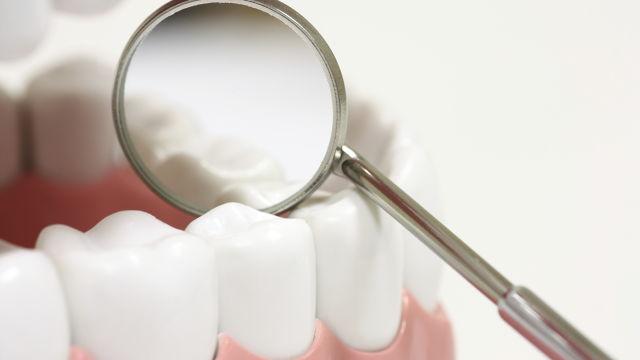 Зубные герметики