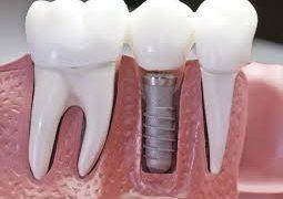 Качественная имплантация зубов