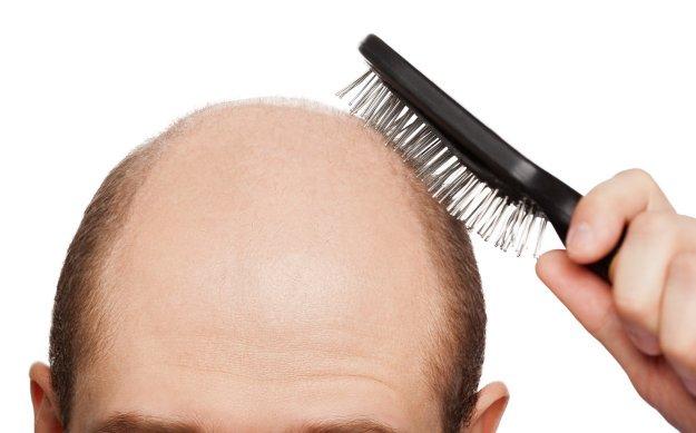 Выпадают волосы из-за высокого давления