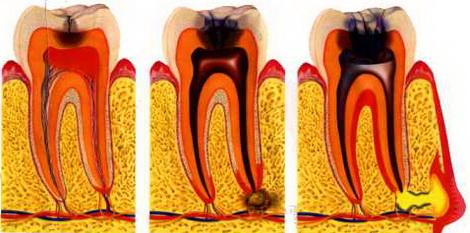 Болит зуб: причины и что делать в домашних условиях