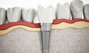 Что такое экспресс-имплантация зубов и, каковы ее преимущества