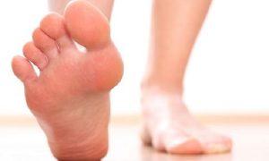 Плоскостопие: симптомы, причины, лечение